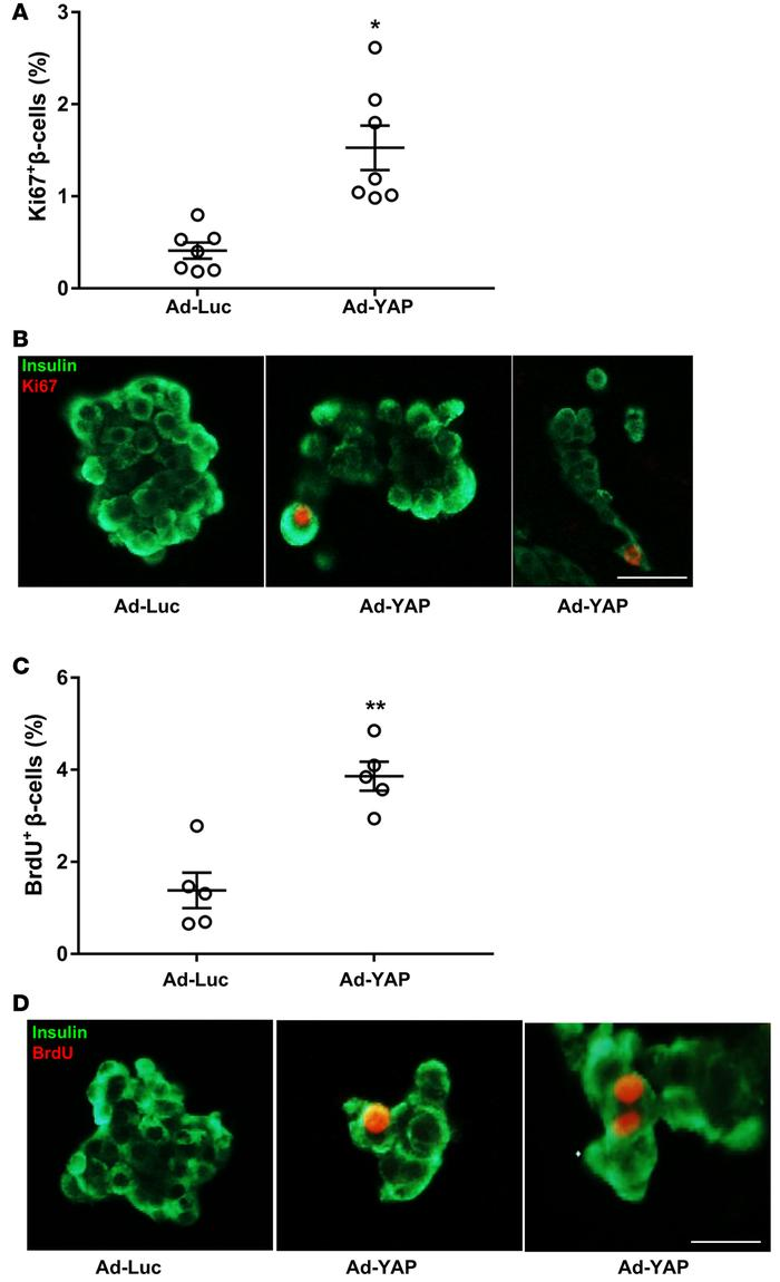 YAP overexpression promotes human β cell proliferation. (A–D) Human isle...
