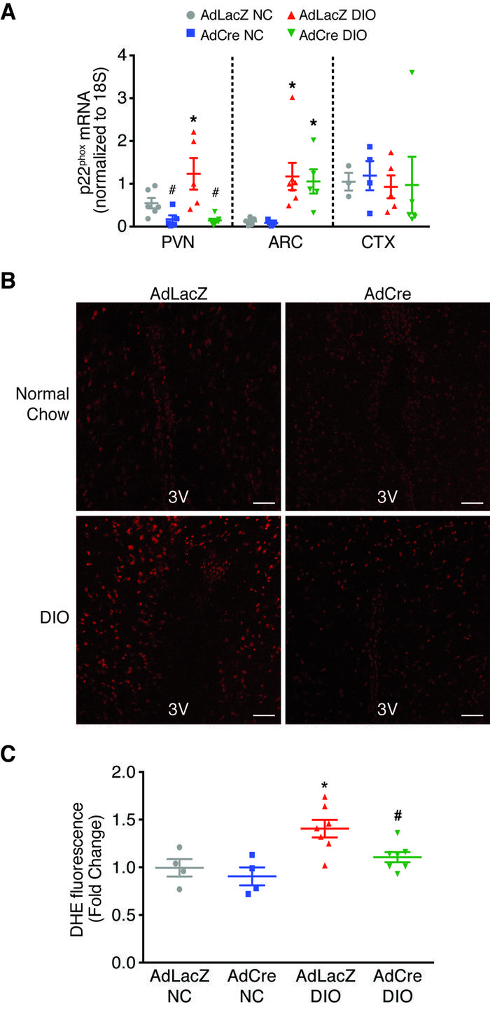 AdCre targeted to the PVN of p22phox/fl mice is effective and selective ...