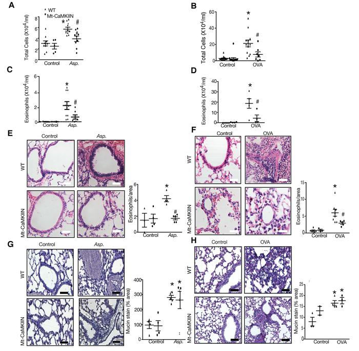Allergen-induced eosinophilia is attenuated in Mt-CaMKIIN mice. (A and B...