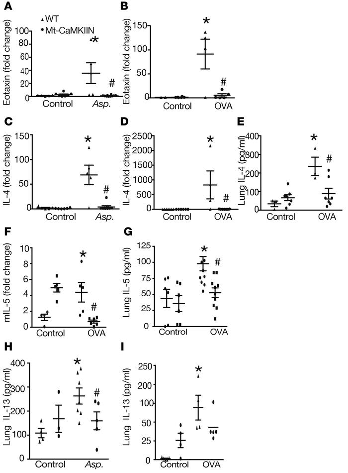Mt-CaMKII inhibition in airway epithelium abrogates allergen-induced inf...