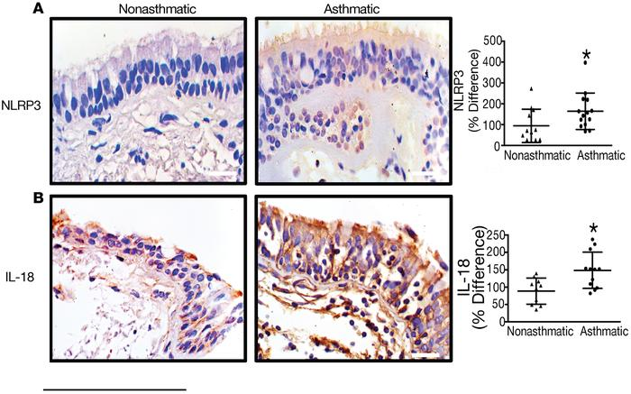 NLRP3 and IL-18 are increased in the airway epithelium of patients with ...
