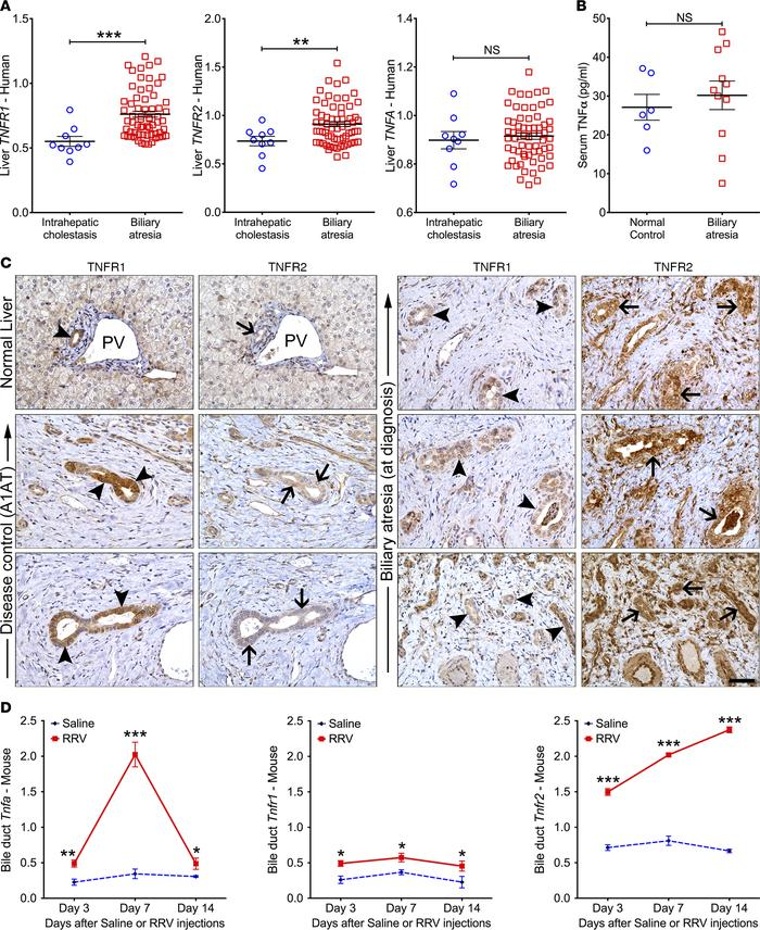 Expression of TNFα and TNFRs in humans and mice with biliary atresia. (A...