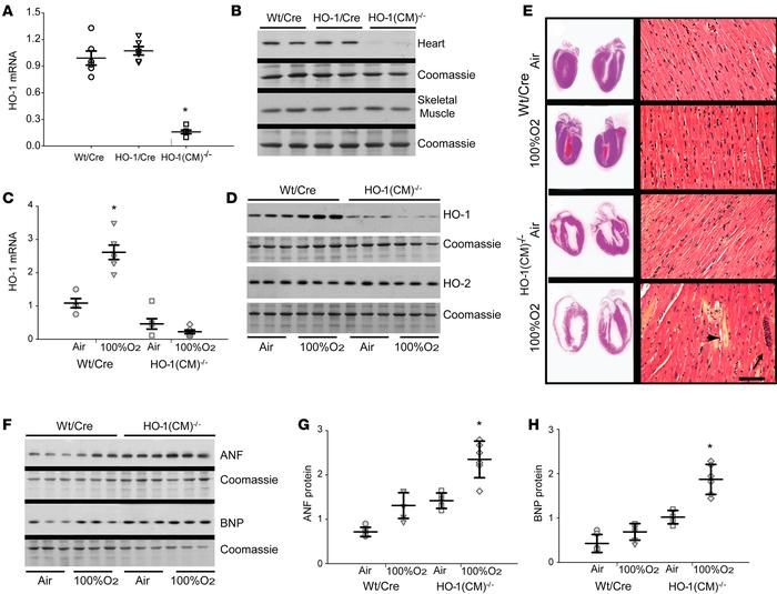 Cardiomyocyte-specific ablation of HO-1 and responses to transient hyper...