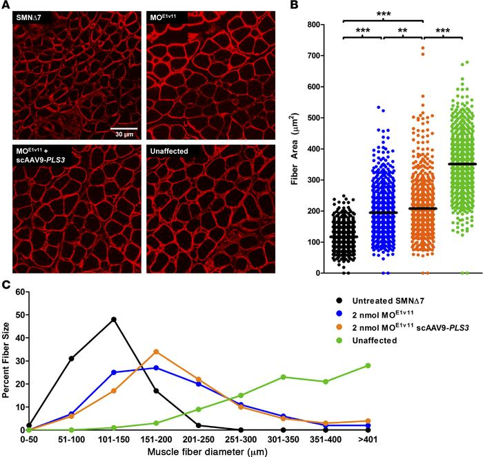AAV9-PLS3 improves muscle fiber area in SMNΔ7 mice treated with 2 nmol M...