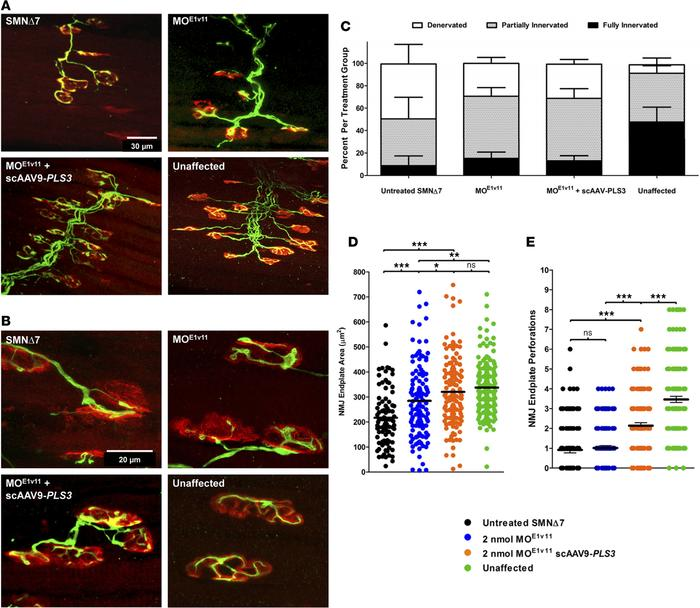 AAV9-PLS3 improves neuromuscular junction size and maturation in SMNΔ7 m...
