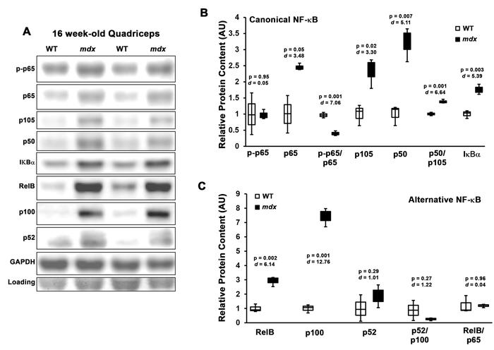 NF-κB components are elevated in stabilized mdx muscle. (A) Representati...