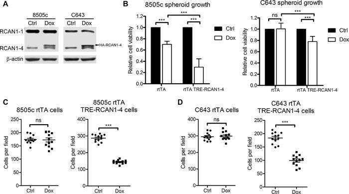 RCAN1-4 overexpression suppresses cell spheroid growth and invasion in v...