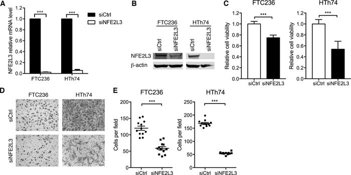 NEF2L3 knockdown suppresses cell invasion. (A and B) FTC and HTh74 shRCA...