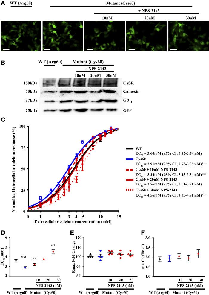 GNA11R6OC mutant increases Ca2+i responses, which can be normalized by t...