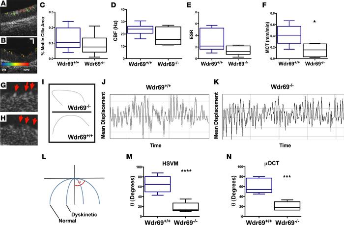Characterization of Wdr69–/– mice. (A) Representative motile ciliary are...