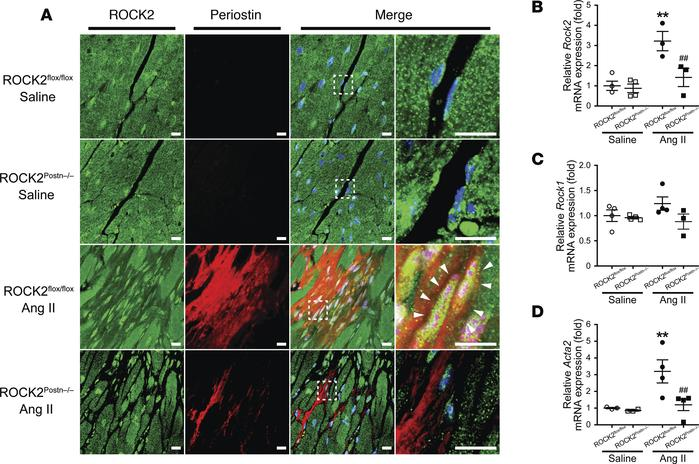 Deletion of ROCK2 in angiotensin II–induced (Ang II–induced) activated c...