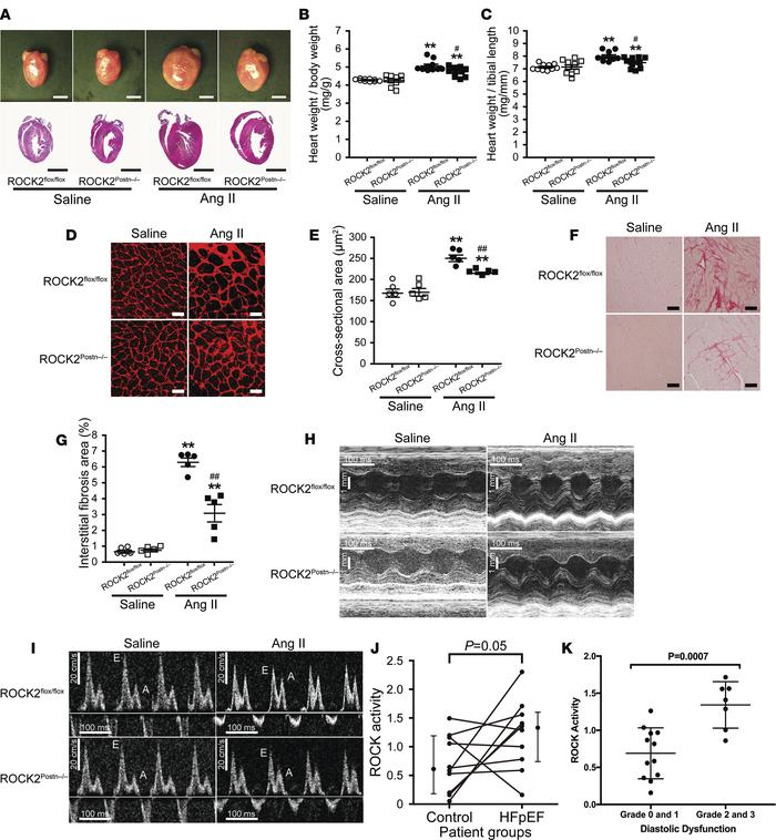 Deletion of ROCK2 in cardiac fibroblasts attenuates angiotensin II–induc...