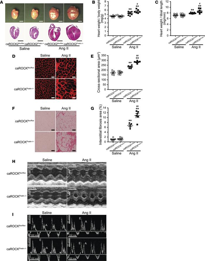 ROCK activation in cardiac fibroblasts develops angiotensin II–induced (...