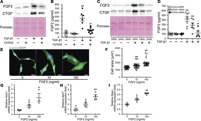 Inhibition of ROCK2 decreases extracellular release of FGF2 from rat neo...
