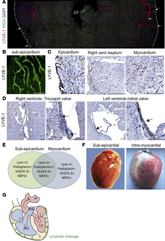 Characterization of lymphatic vasculature in adult heart. (A) Immunostai...