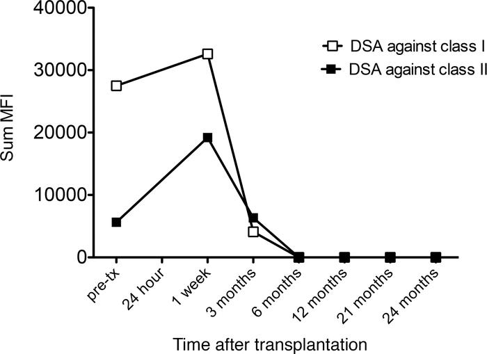 Sum mean fluorescence intensity of circulating donor-specific antibodies...