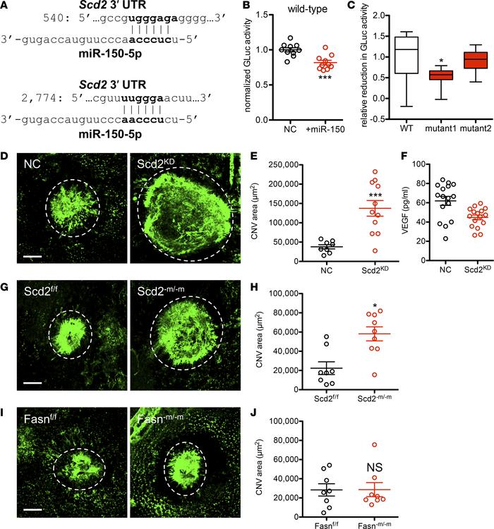 microRNA-150 directly targets Scd2 and thereby promotes pathological ang...