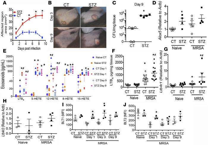 Increased lesion size and bacterial loads in diabetic mice correlates wi...