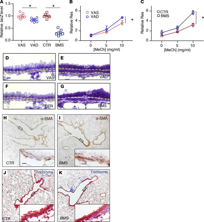 Disruption of RA signaling in vivo for 5 days results in airway hyperres...
