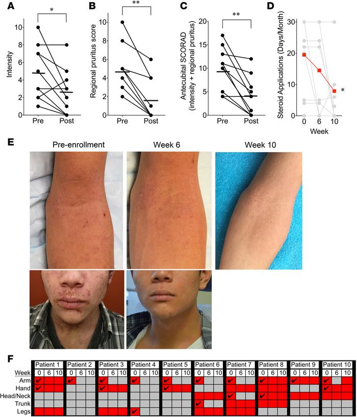 Topical Roseomonas mucosa shows activity against atopic dermatitis in ad...