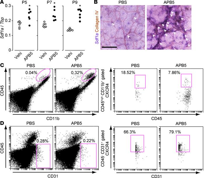 SDF-1α/CXCR4 expression was observed in retinal ECs in APB5-treated mous...