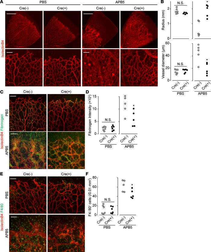 Endothelial CXCR4 deficiency ameliorated the disruption of BRB. (A) Repr...