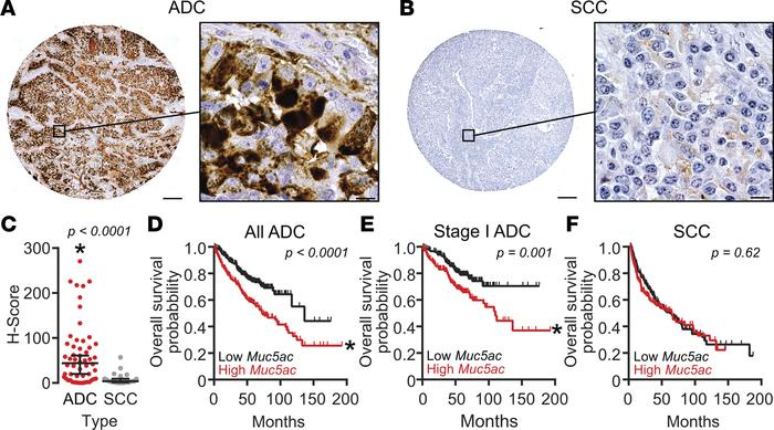 MUC5AC production is associated with human lung ADC and poor survival. (...