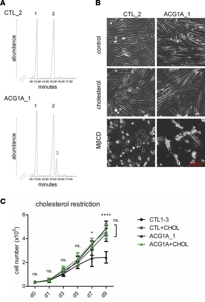 C14 sterol reductase activity is impaired in LBR-deficient cells. (A) LB...