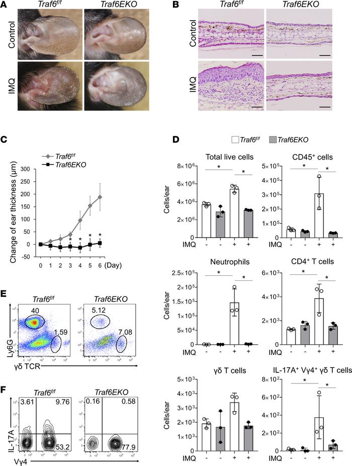 Traf6EKO mice are resistant to psoriatic inflammation induced by IMQ. (...
