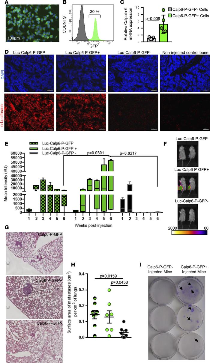 Calpain-6–expressing cells are tumor-initiating cells. (A) Fluorescence ...