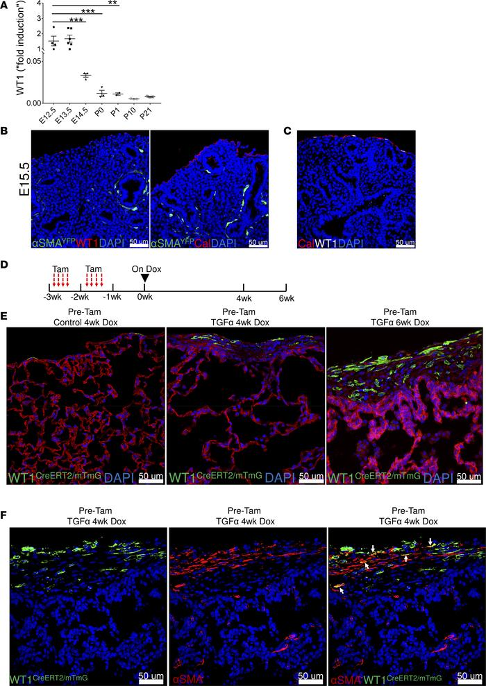 Postnatal WT1-positive mesothelial cell contributions to myofibroblasts ...