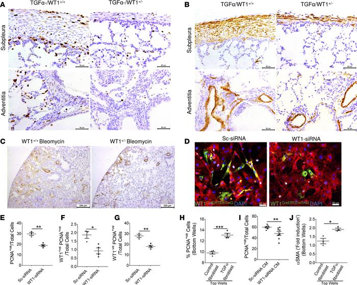 Mechanisms of WT1-driven fibroproliferation and myofibroblast transforma...