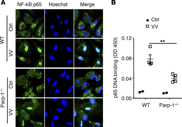 PARP-1 promotes NF-κB nuclear translocation and DNA binding in microphag...