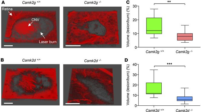 Laser-induced choroidal neovascularization (CNV) is reduced in CAMKIIγ- ...