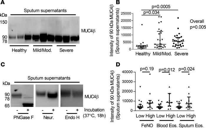 N-glycosylated 90-kDa MUC4β was higher in asthmatic sputum supernatants ...