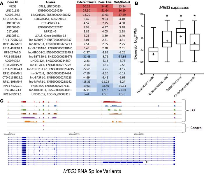 Altered LncRNA expression in IPF epithelial cells. (A) Differentially ex...