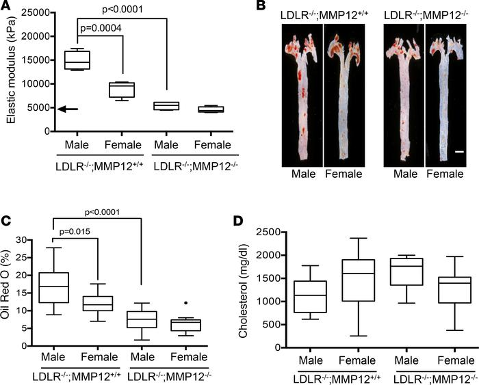 Deletion of MMP12 eliminates the male sex bias for arterial stiffening a...