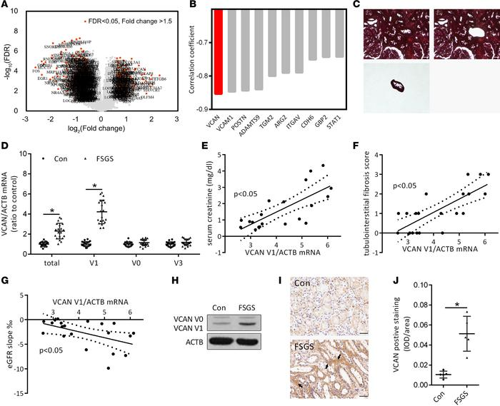 Expression of versican V1 in renal tubulointerstitial tissues of FSGS pa...