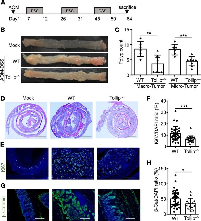 Tollip deficiency decreased tumorigenesis in the AOM-DSS mouse model of ...