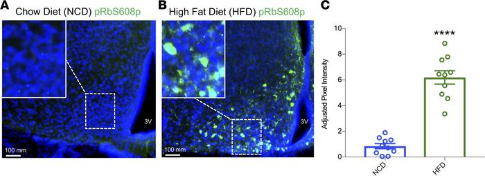 High-fat diet feeding induces pRb phosphorylation in the MBH. Male 6-wee...