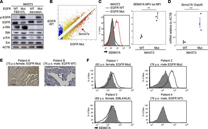 Oncogenic EGFR signals induce SEMA7A expression in mouse fibroblast cell...
