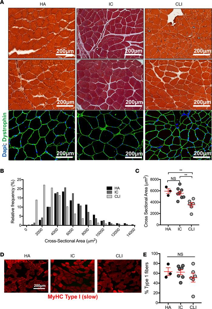 Jci Insight Extensive Skeletal Muscle Cell Mitochondriopathy