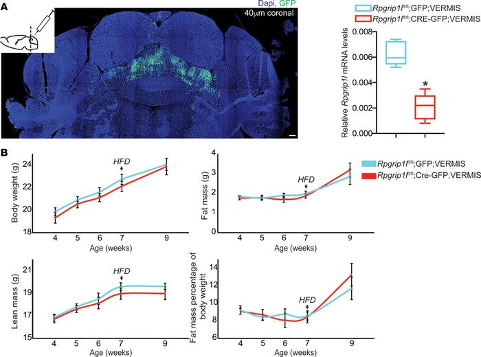 Cerebellar Rpgrip1l hypomorphism has no effect on energy balance. (A) St...