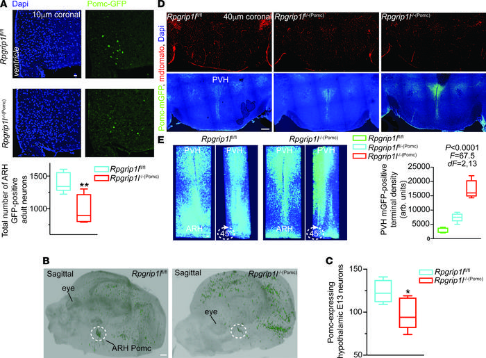 Neurostructural changes in mice congenitally deleted for Rpgrip1l in Pom...