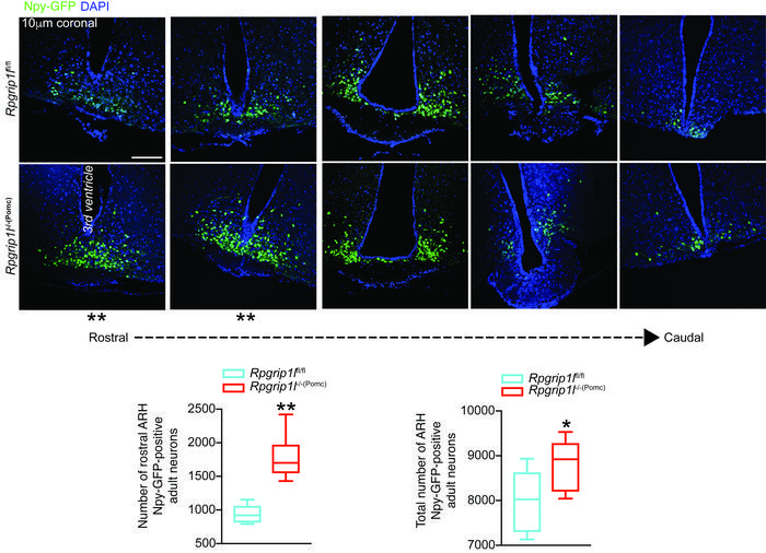 Increased numbers of hypothalamic Npy neurons in male mice congenitally ...