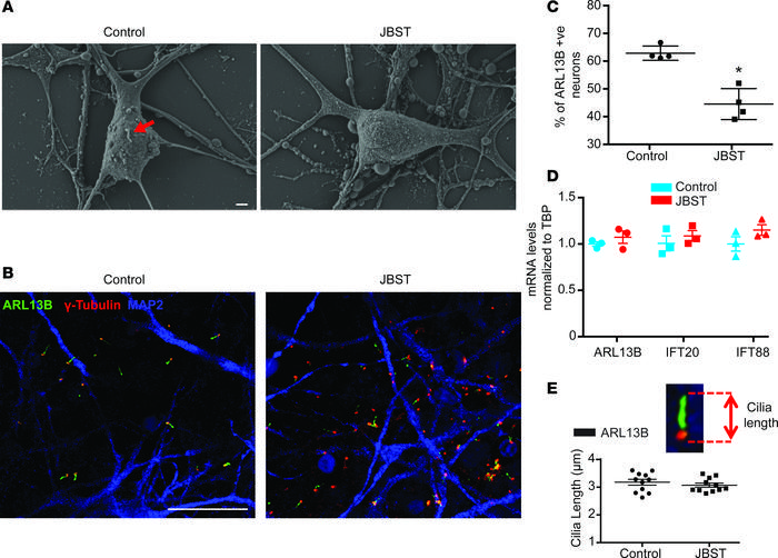 Reduced ciliogenesis in human neurons with hypomorphic mutations of RPGR...