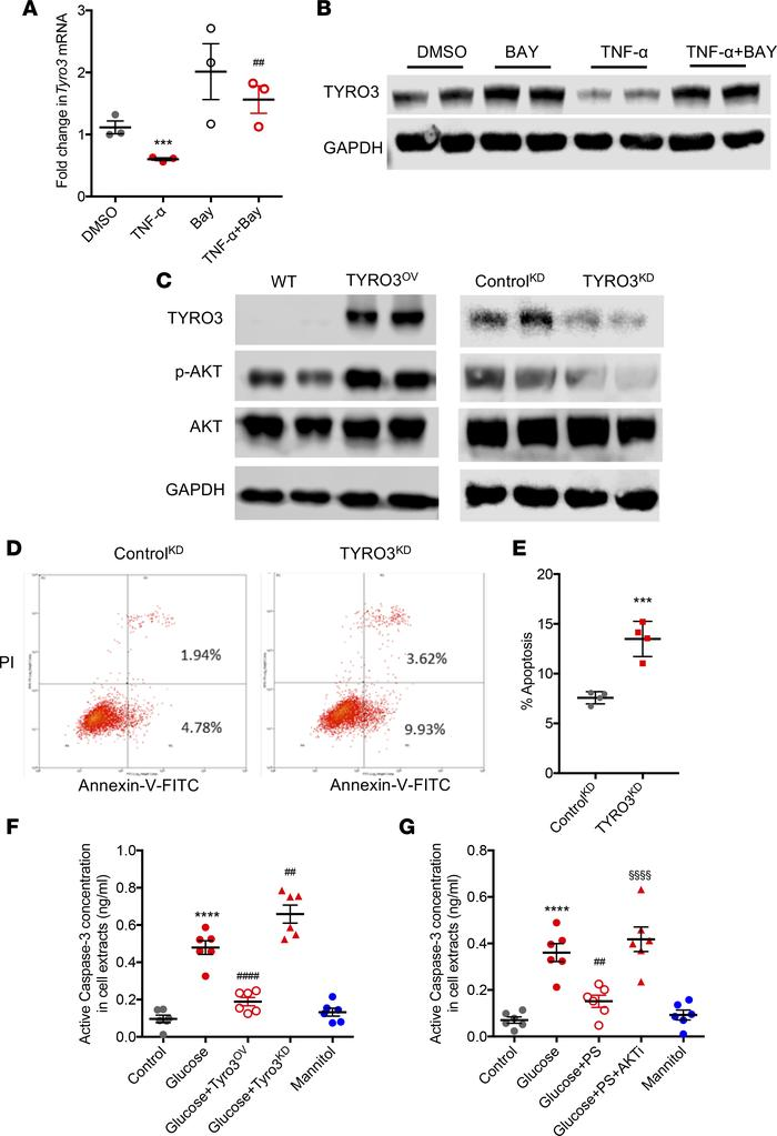 TYRO3 signaling affects AKT activation in cultured podocytes. (A) Real-t...