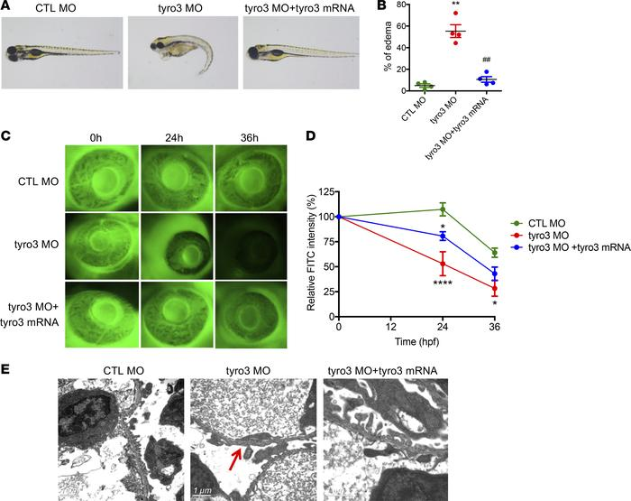 Knockdown of tyro3 in zebrafish larvae compromises the glomerular filtra...