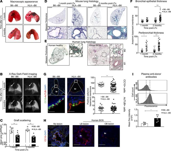 HLA-A2–knockin lung allografts are chronically rejected in a mouse model...