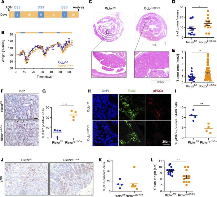 RictorLyz2-Cre mice have increased susceptibility for colorectal cancer....